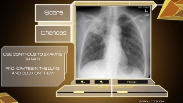 Bersifat sebagai simulasi, gamer bisa membantu proses penelitian terhadap penyakit TBC lewat Sanitarium.